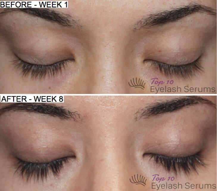 top 10 eyelash serums before after results